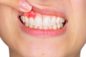 Gum Disease Dental Check Up Cape Town Gardens - Ratan and Sig Dentistry
