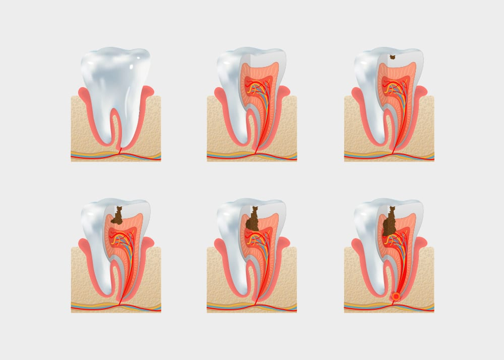 Cavity Treatment Cape Town & Tooth Decay Cape Town Dentist
