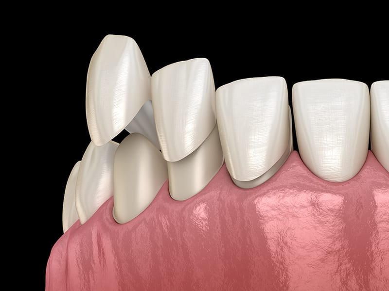 Porcelain Veneers - Ratan and Singh Dentistry