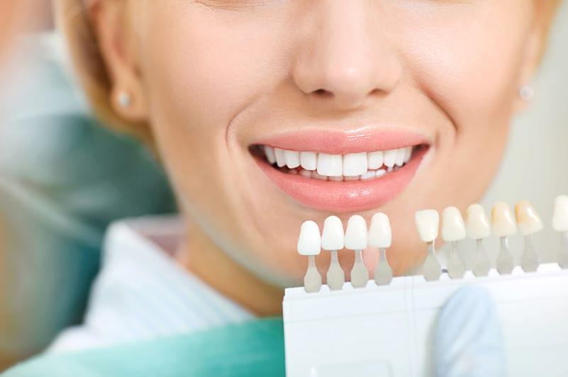 Oral Hygienist Teeth Cleaning Procedure - Ratan and Singh - Teeth Cleaning